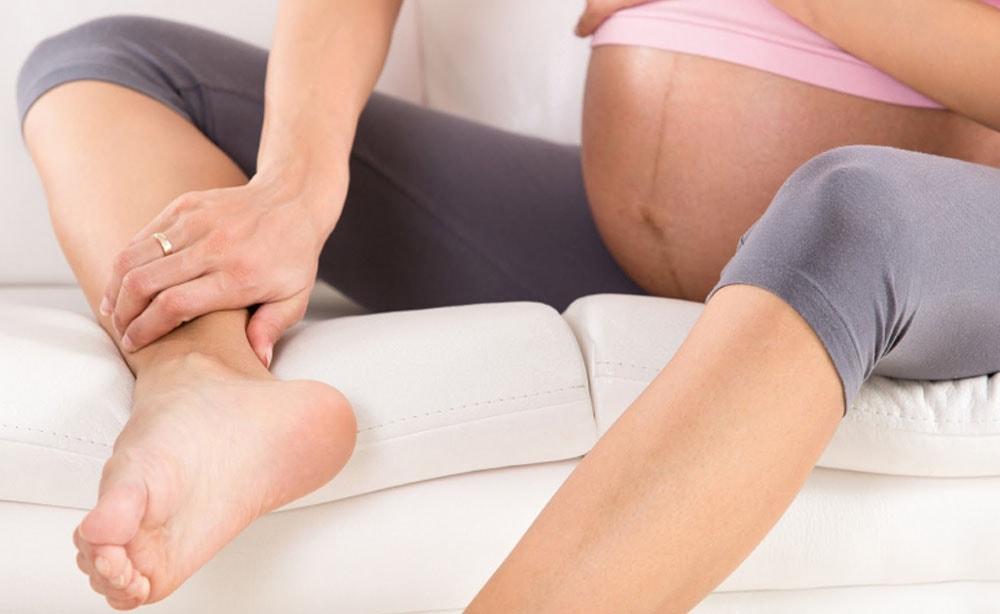 Сильный отек ног при беременности на поздних сроках