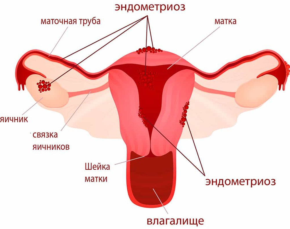 seks-devushki-v-plate-chulkah