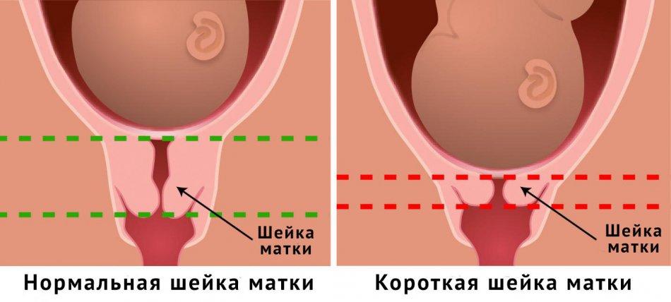 Короткая шейка матки при беременности 22 недели