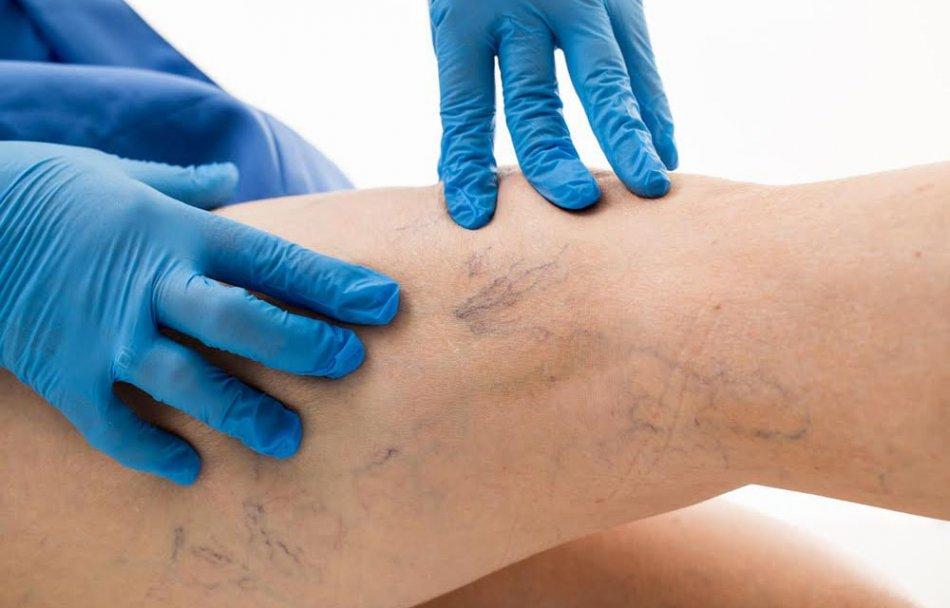 Осмотр варикоза ног