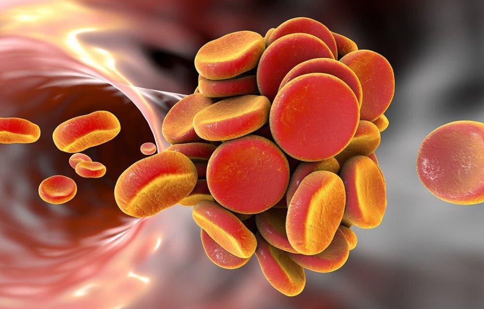 Эноксапарин натрия при беременности