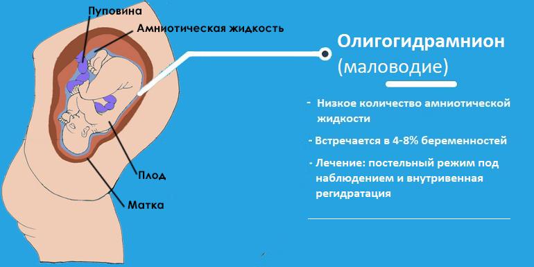 Низкое кол-во воды при беременности
