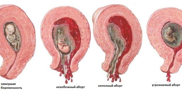 Причины замерзшей беременности