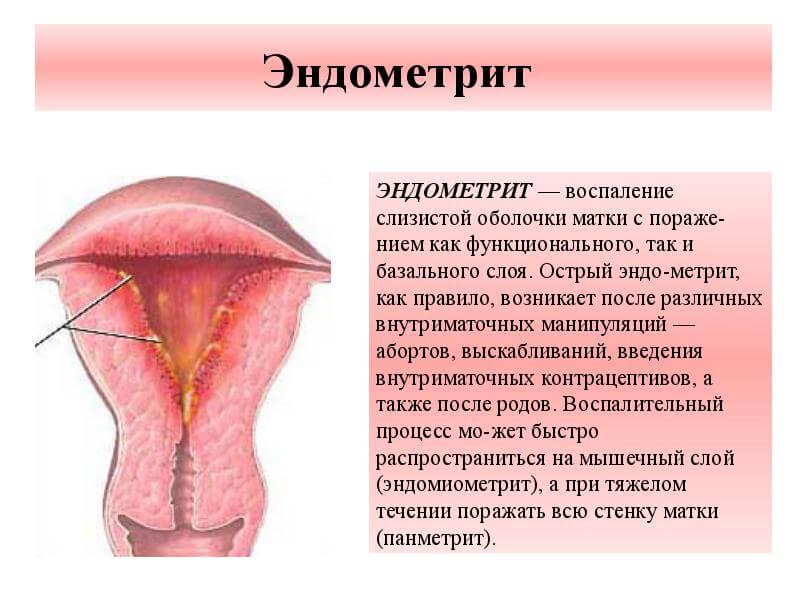 Эндометрит