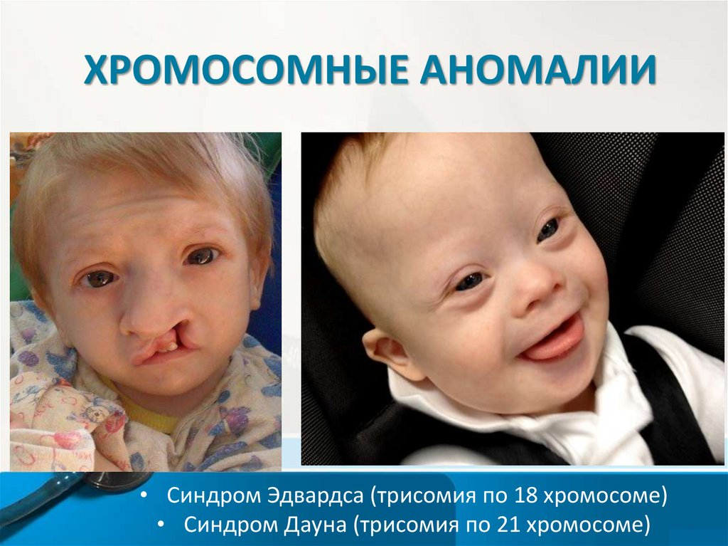 Хромосомные аномалии