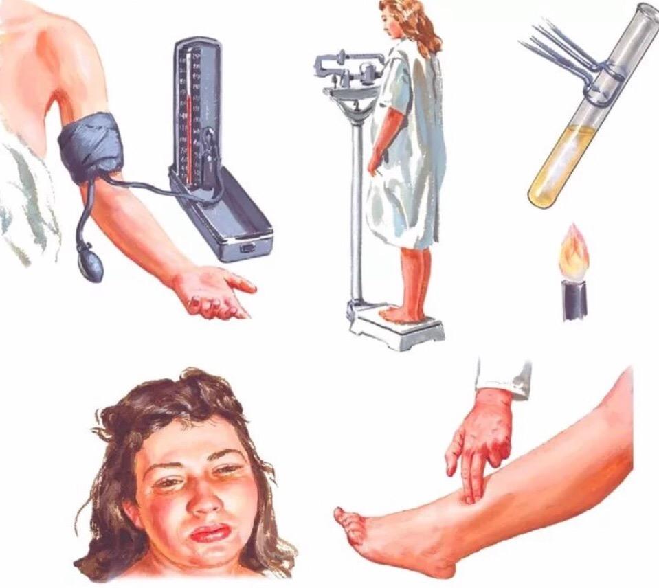 Диагностика преэклапсии