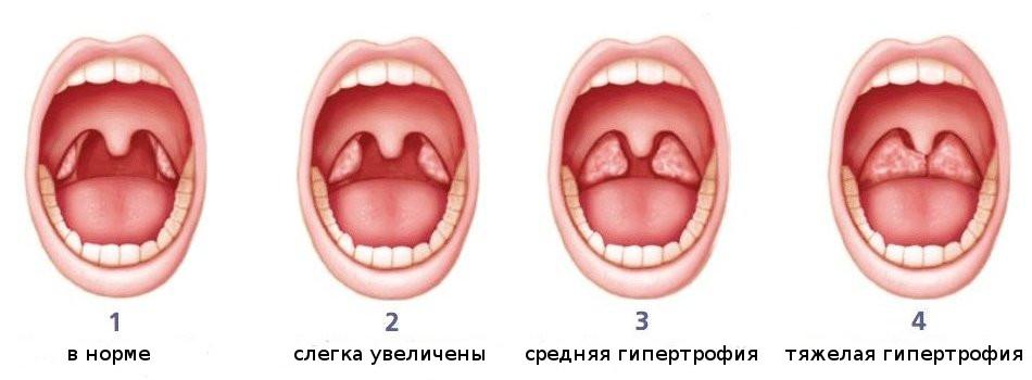 Как выглядят аденоиды