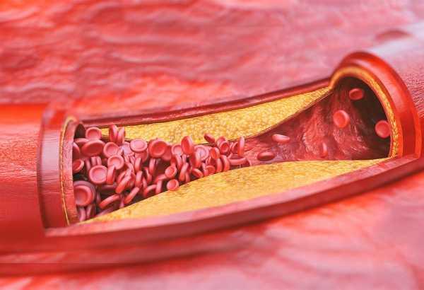 Нормализация холестирина
