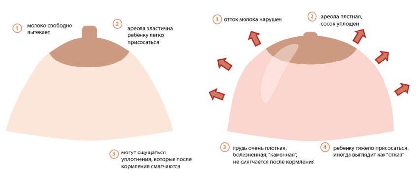Набухание груди при беременности