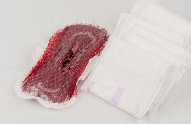 Большой кровоток после родов