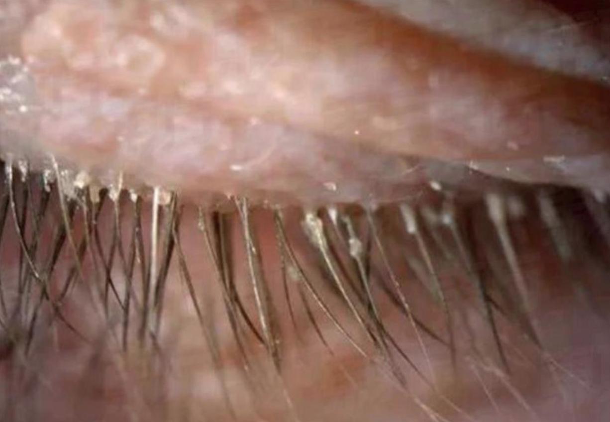 Ресничные вши