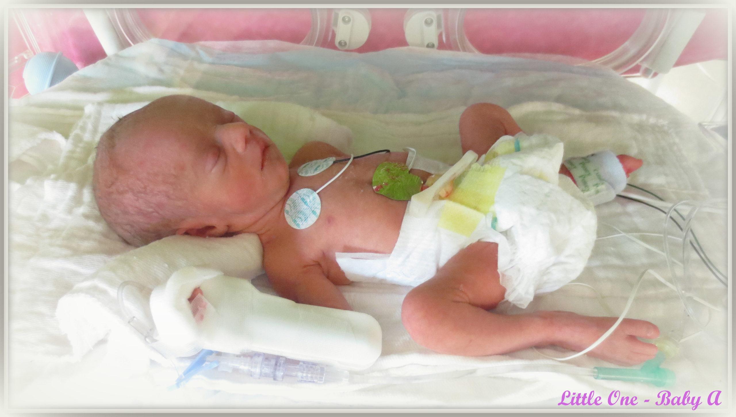 ребенок в 34 недели