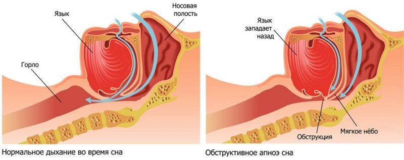 Апноэ при беременности