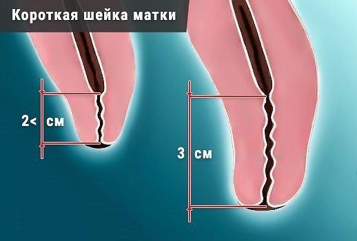 Короткая шейка матки