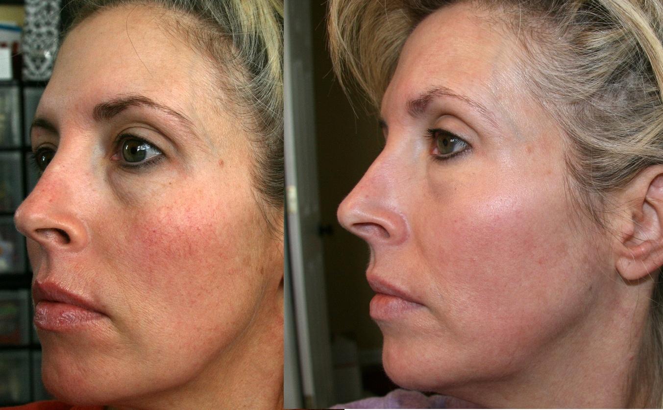 Как работает лазерная шлифовка кожи