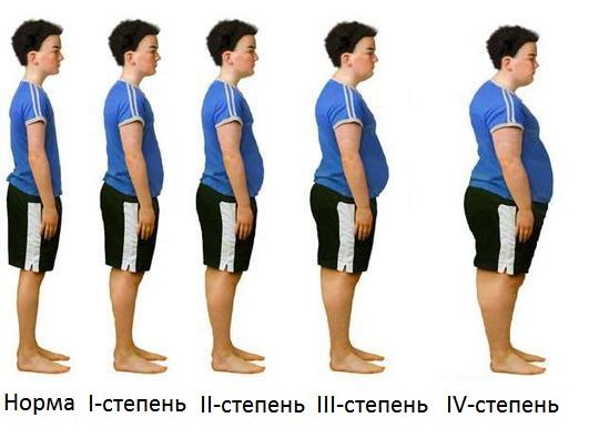 степени ожирения у ребенка